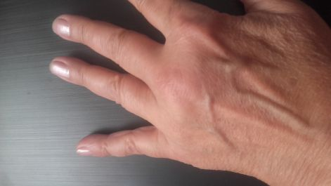 Remuma kezelése - Dobi Imre csontkovács
